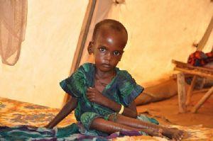 Au Tchad, des milliers d'enfants touchés par la malnutrition sévère aiguë